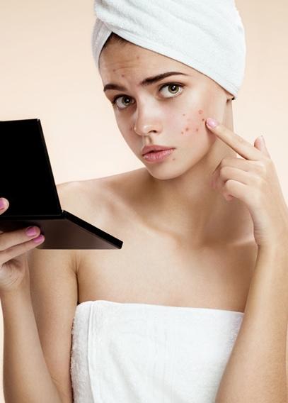 Acne Treatment San Diego, CA