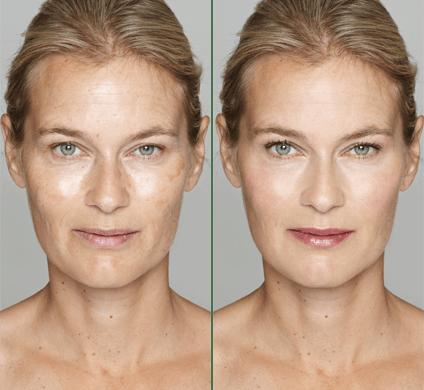Cosmetic Laser Dermatology – La Jolla, CA