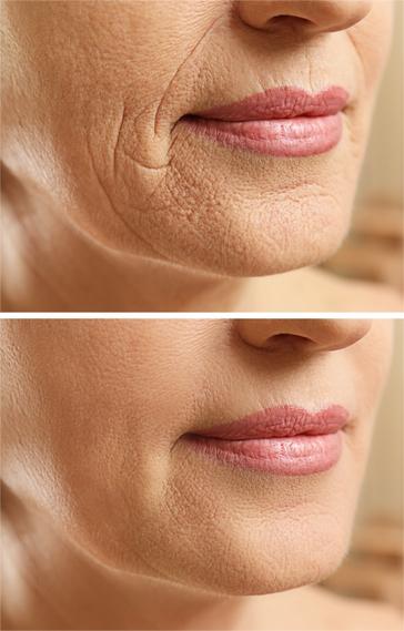 Laser Skin Resurfacing Treatment - San Diego, CA