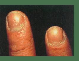 Nail bite