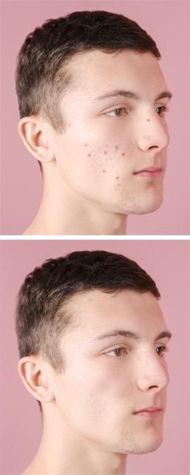 Dermatology Specialists San Diego, CA