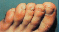 Nail Fungal Infections Treatment