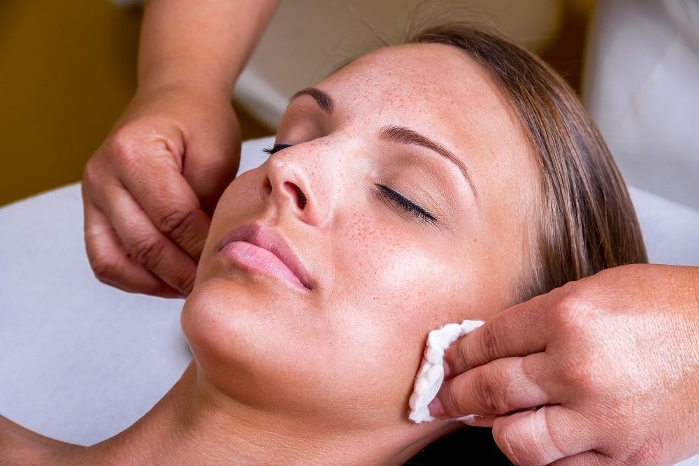 Facial Peel