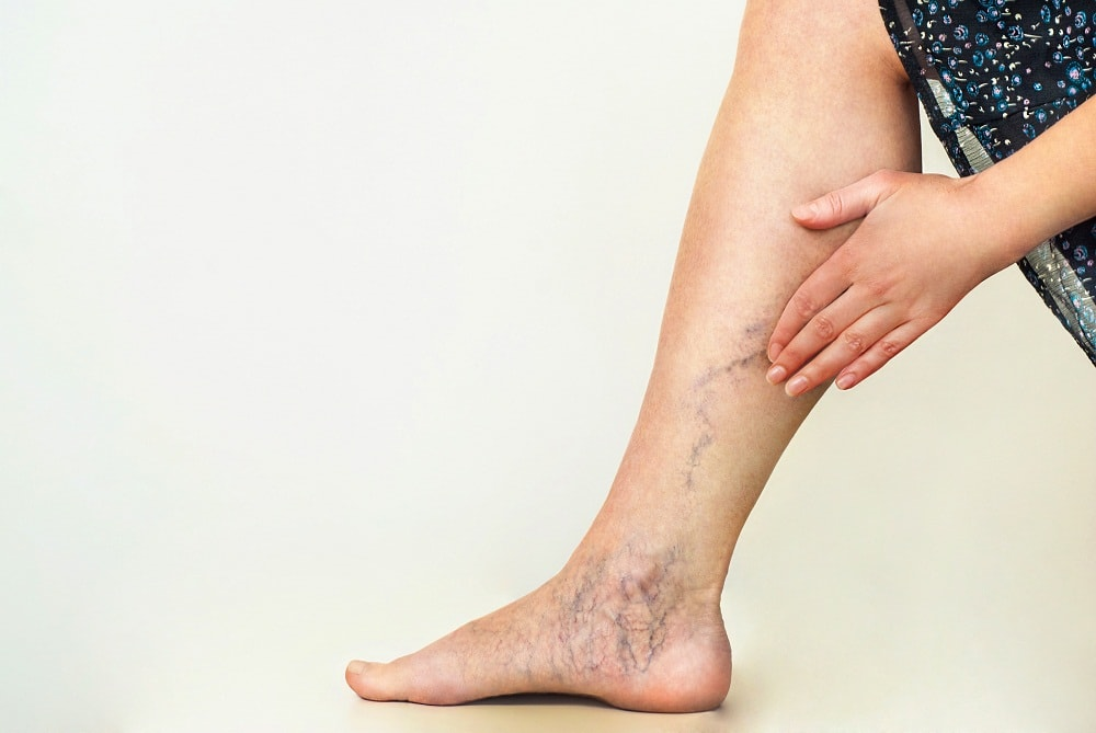 Varicose veins on woman's leg