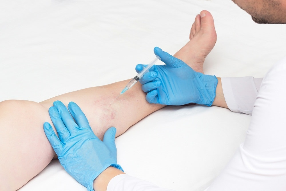 Doctor treating varicose veins
