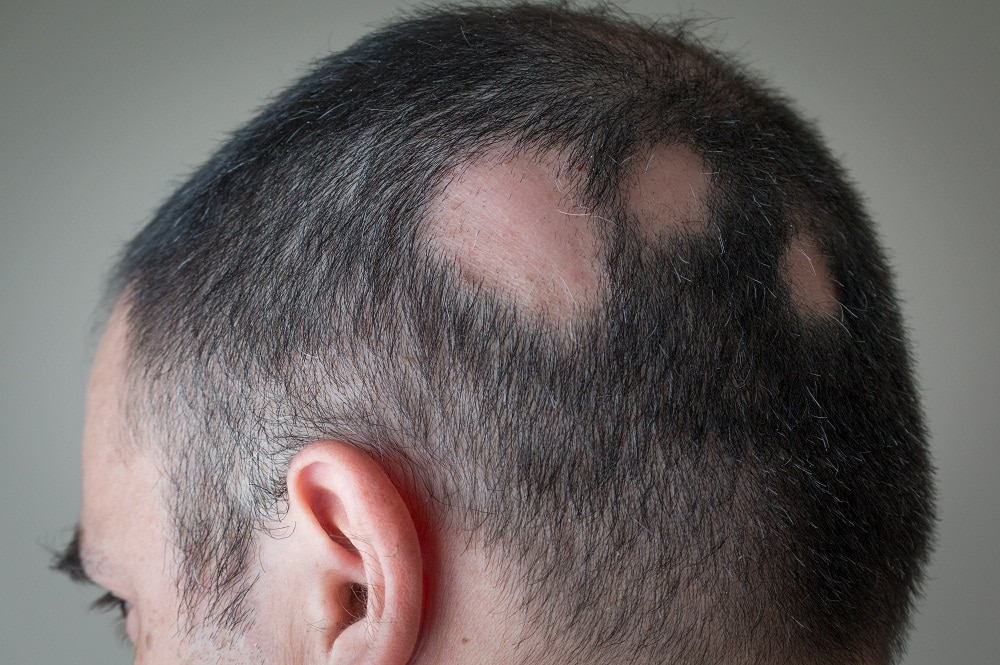 Man with bald spots from alopecia