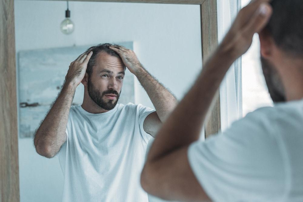Man examining thinning hair in mirror