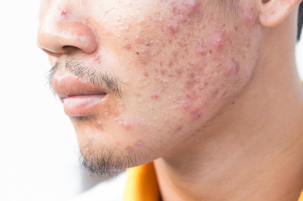 Best Procedures to Remove Acne Scars