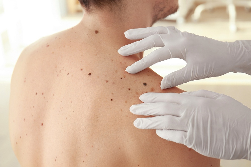 The Benefits of Visiting a Dermatologist