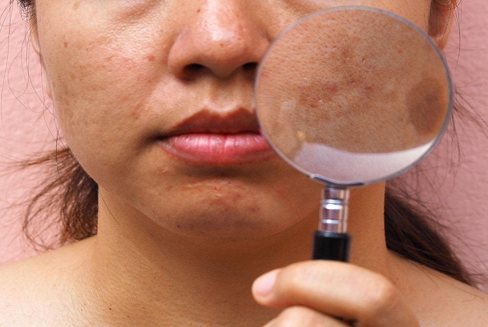 Skin Conditions That Can Impact Skin Cancer Detection