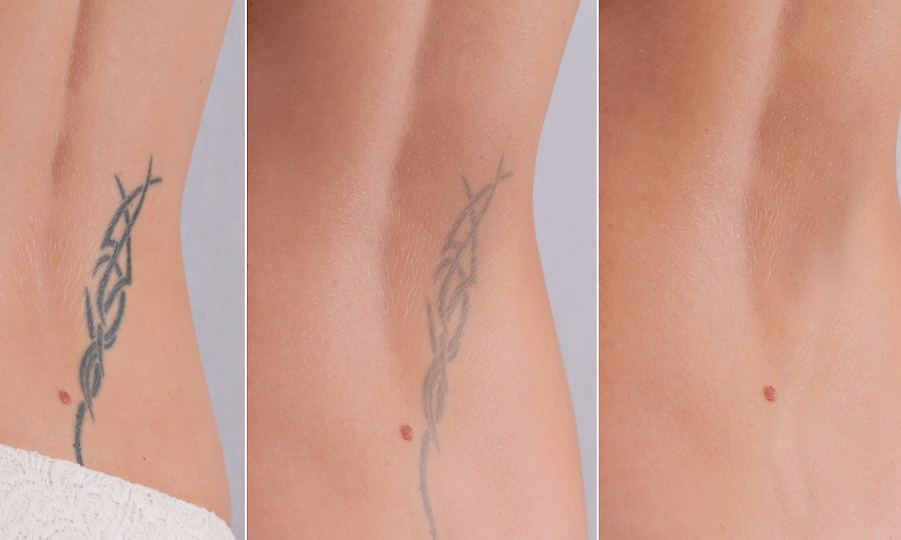 Comparing Tattoo Removal Cream with Laser Removal