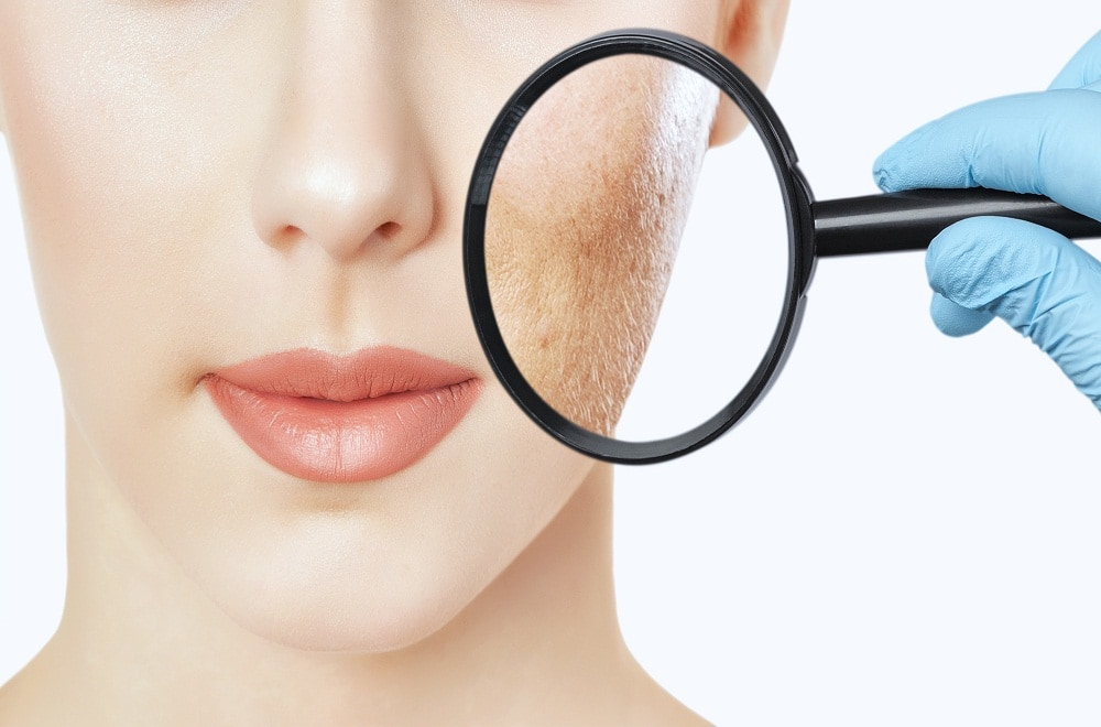 cosmetic dermatology in san diego ca