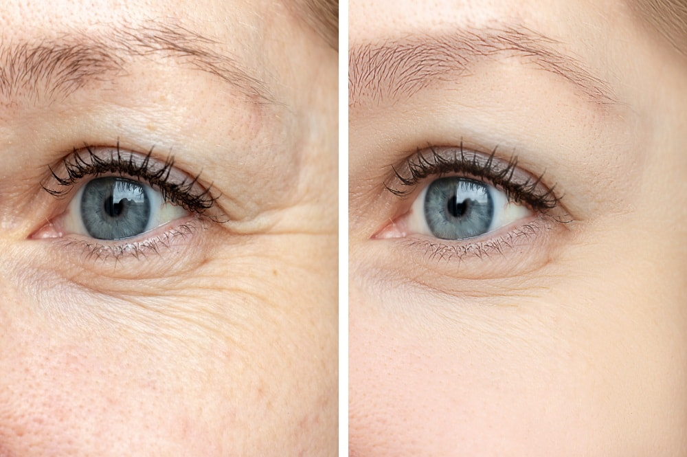 Before and after Botox injection at dermatology center in San Diego, CA
