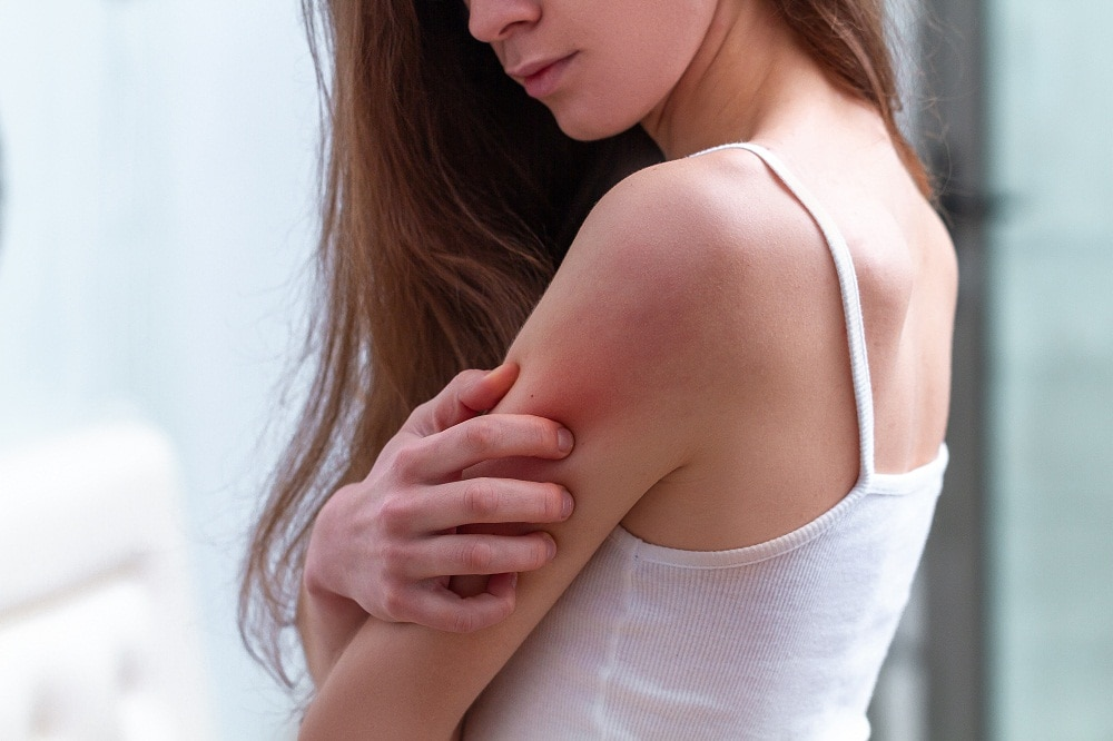 Woman Itching Upper Arm