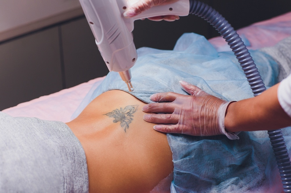 Things to Consider When Choosing a Laser Tattoo Removal Clinic
