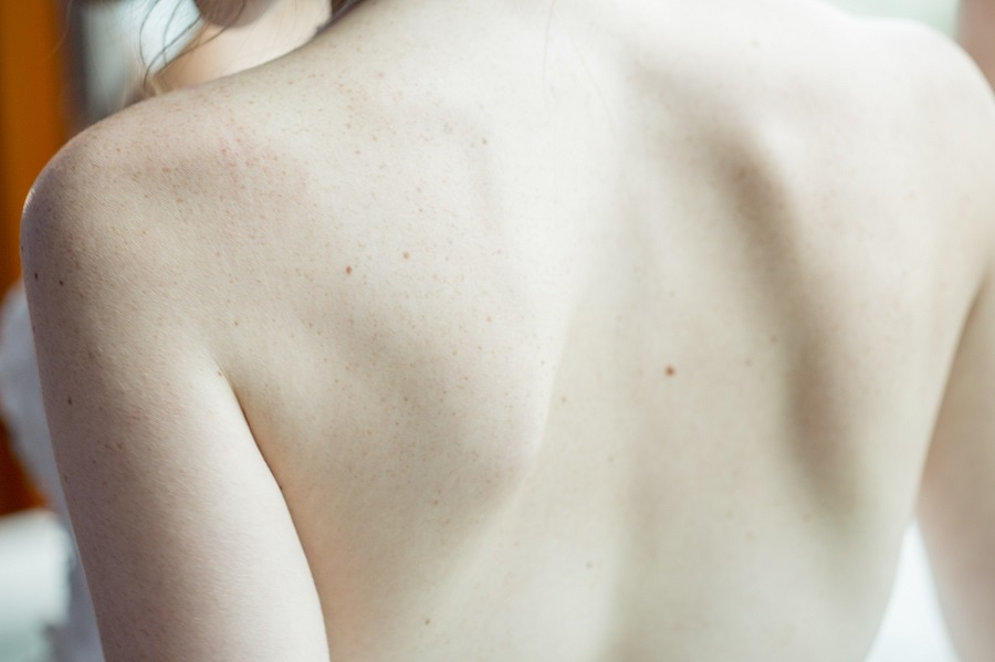 Close Up of Bare Back