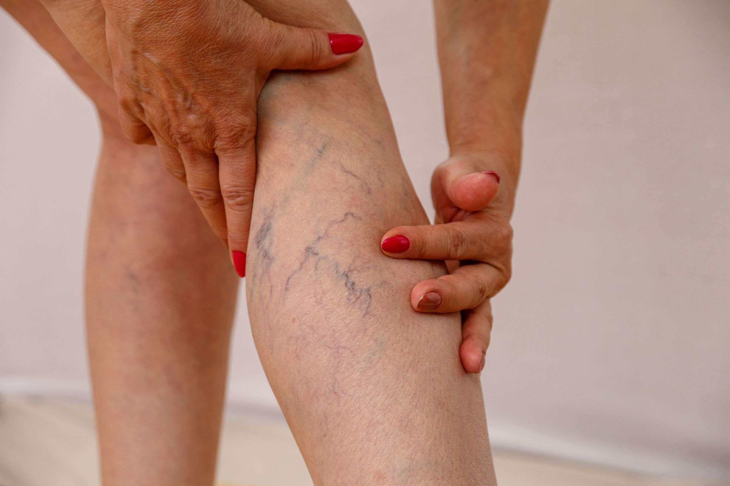 What Are the Different Types of Varicose Vein Treatments?