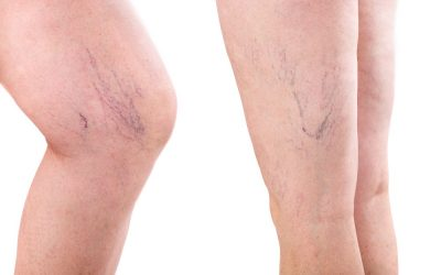 Things to Expect When Having a Spider Vein Removal Procedure