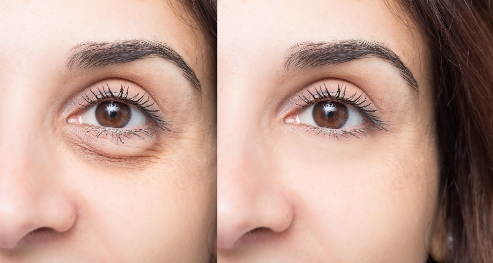 How Restylane Can Fix Your Undereye Bags